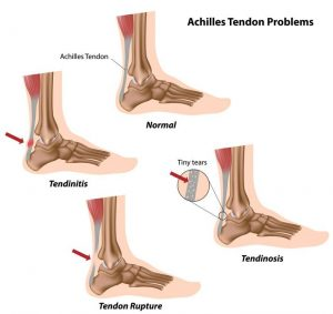 Tendinitis ahilove tetive